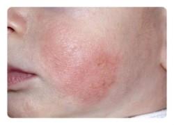 Последствия в виде дерматита