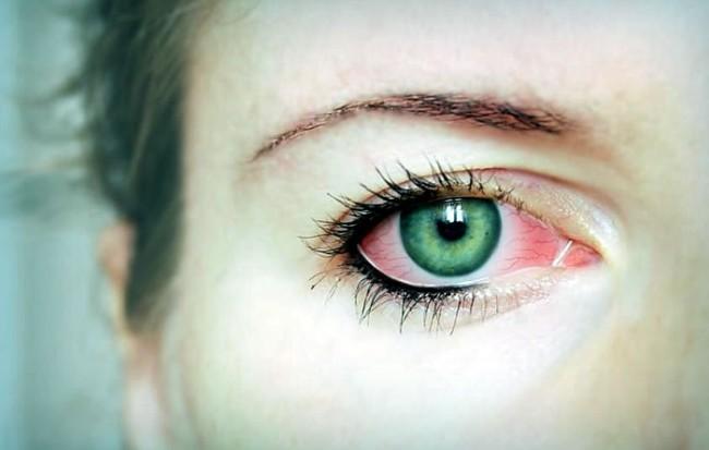 Покраснения глаза человека